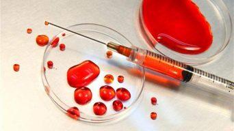 Kan Testleri